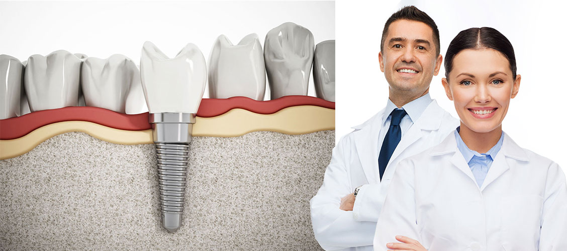Tooth-implant-sergery-steps