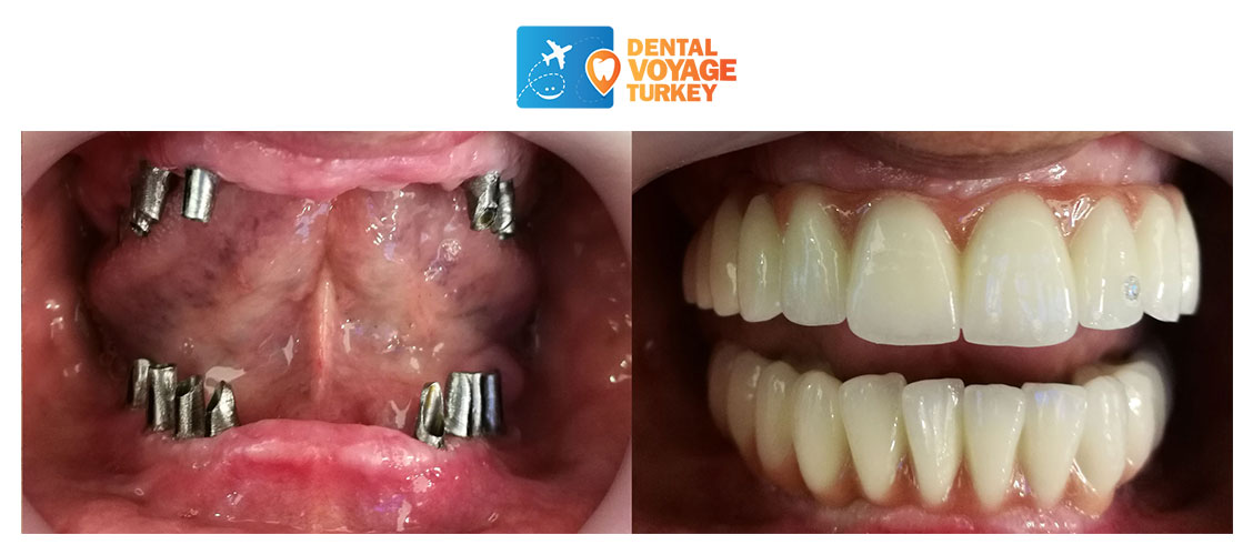 before-after-dental-implants