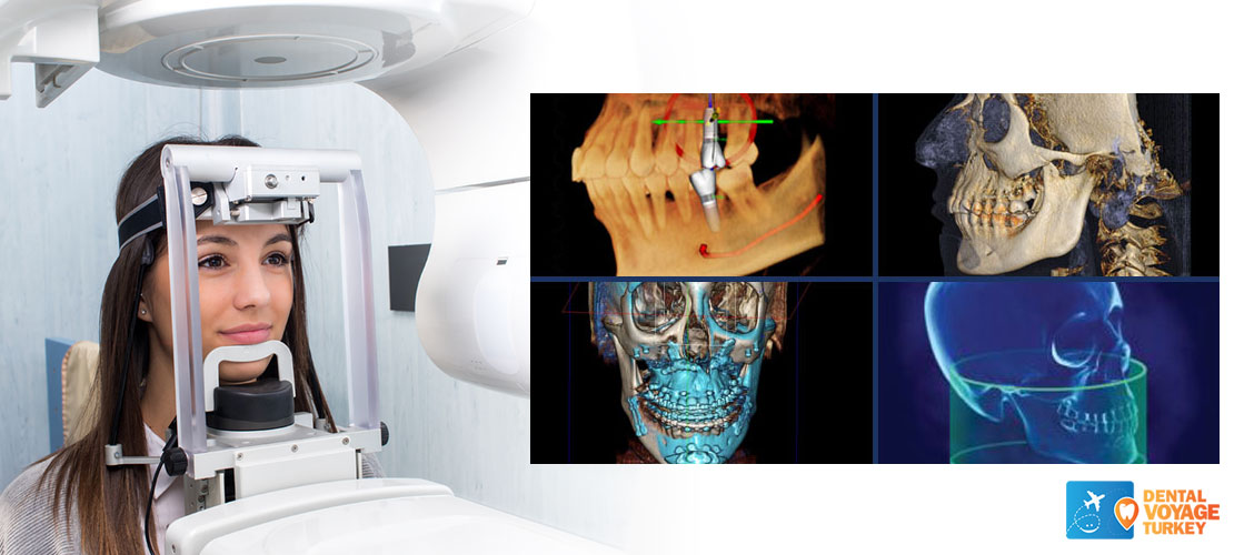 dental-3d-ct-scan