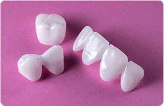 dental-implants-turkey