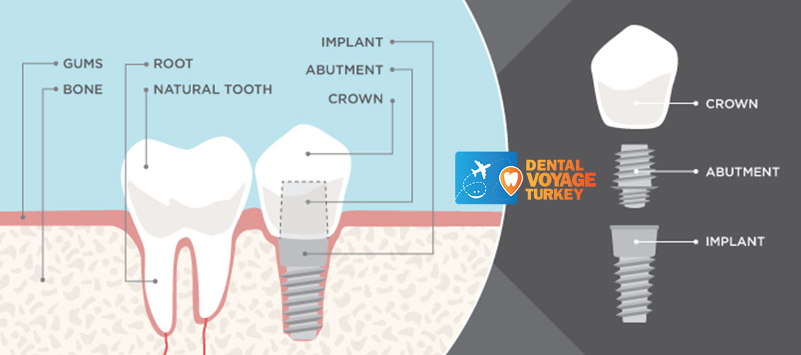 what-are-the-parts-of-dental-implant