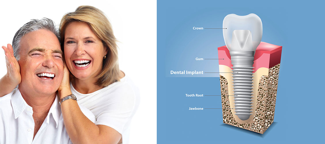 what_is_a_dental_implant